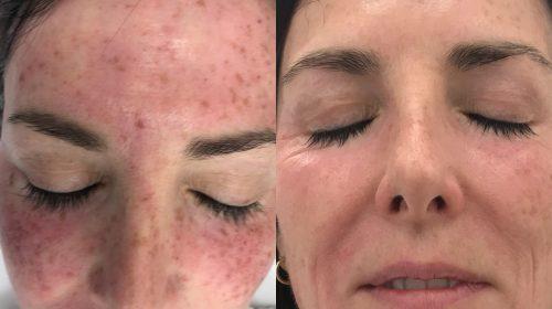 IPL skin rejuvenation Ipswich