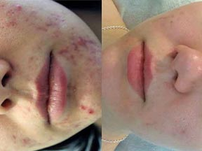 acne treatment Ipswich Suffolk