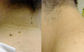 Skin Tag Removal Ipswich