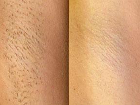 IPL laser hair removal Ipswich