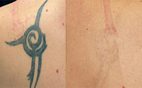 Laser Tattoo Removal Ipswich