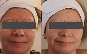 Microdermabrasion facial Ipswich